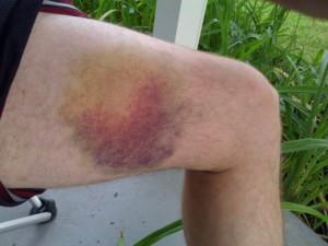 Rich Bruise 2